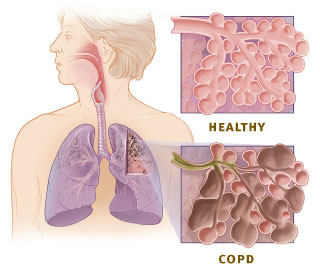 healthy-vs-copd